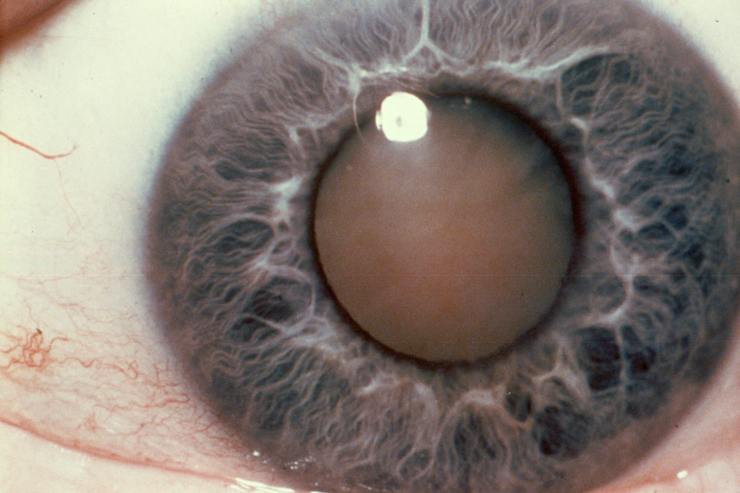 an introduction to cataracts Morphologic types of age-related cataracts are nuclear, cortical,  introduction the crystalline human lens is a transparent, biconvex structure,.