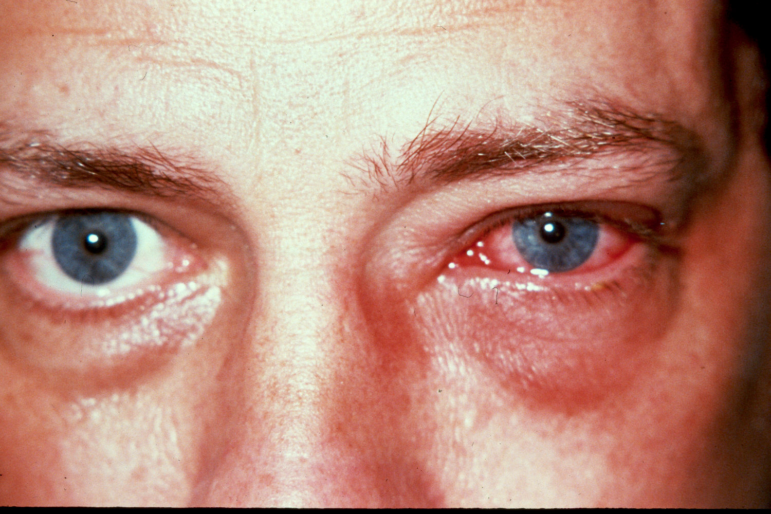 Pictures of Ocular Diseases and Problems – Bacterial ...