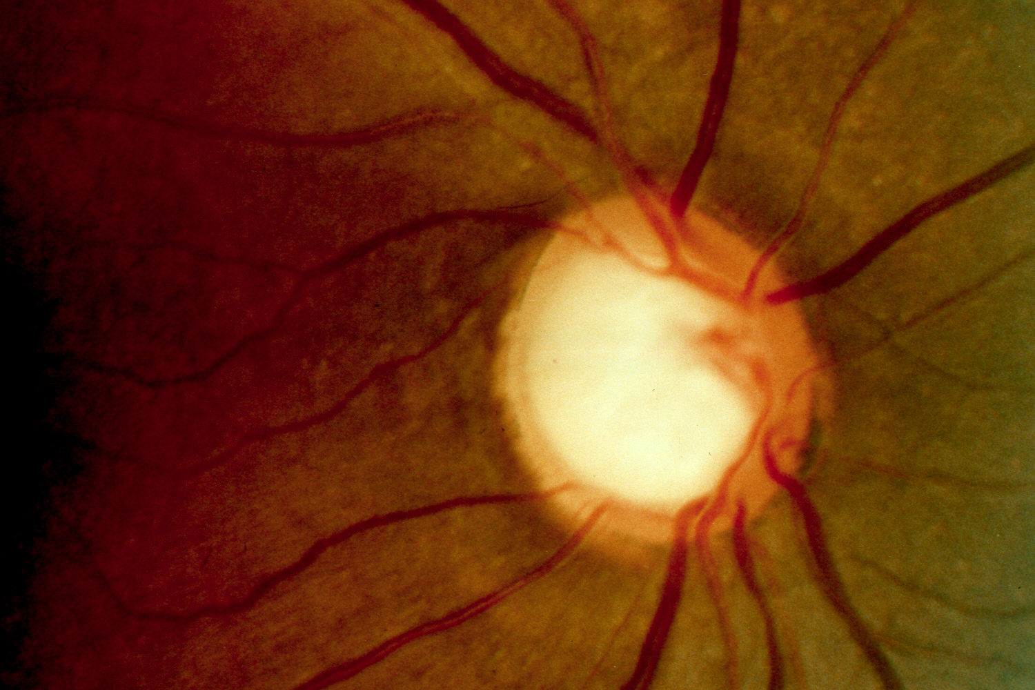 Glaucoma Bing Images